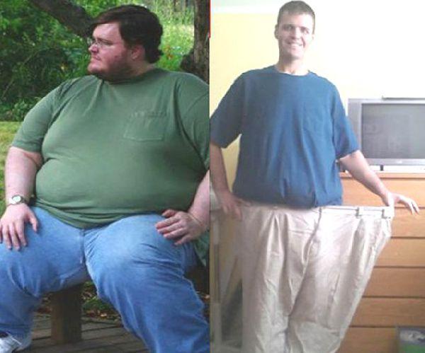 Лекарства против лишнего веса